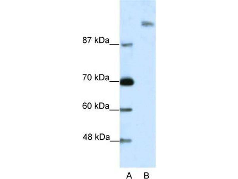 Western Blotting (WB) image for anti-Suppressor of Ty 6 Homolog (S. Cerevisiae) (SUPT6H) (N-Term) antibody (ABIN2780483)