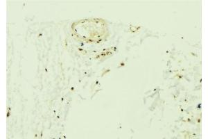 Image no. 1 for anti-Zinc Finger Protein 592 (ZNF592) antibody (ABIN6258364)