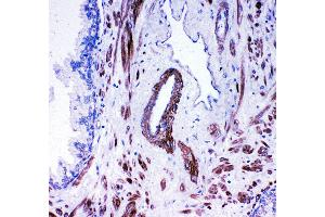 Image no. 1 for anti-Angiotensin I Converting Enzyme (Peptidyl-Dipeptidase A) 1 (ACE) (AA 702-715), (Middle Region) antibody (ABIN3042841)