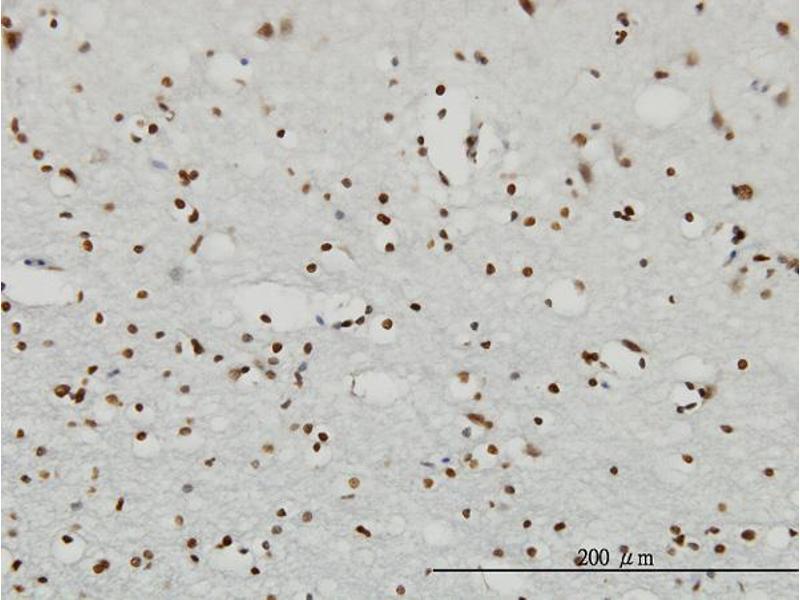 Immunohistochemistry (IHC) image for anti-Ribosomal Protein S6 Kinase, 90kDa, Polypeptide 2 (RPS6KA2) (AA 631-733) antibody (ABIN393519)