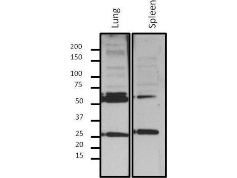 Western Blotting (WB) image for anti-Lamin A/C (LMNA) antibody (ABIN261550)