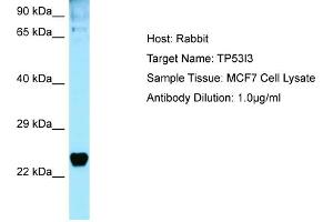 Western Blotting (WB) image for anti-Tumor Protein P53 Inducible Protein 3 (TP53I3) (C-Term) antibody (ABIN2789865)