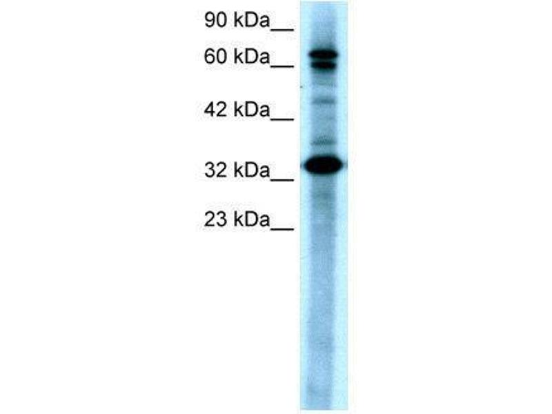Western Blotting (WB) image for anti-TGF-beta Activated Kinase 1/MAP3K7 Binding Protein 2 (TAB2) (N-Term) antibody (ABIN182562)