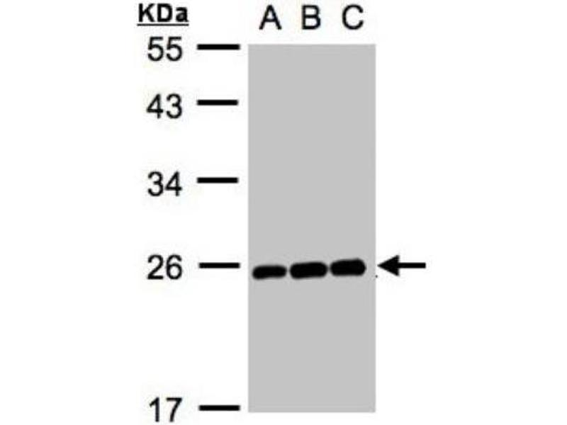 Western Blotting (WB) image for anti-MAD2L1 抗体 (MAD2 Mitotic Arrest Deficient-Like 1 (Yeast)) (C-Term) (ABIN441319)