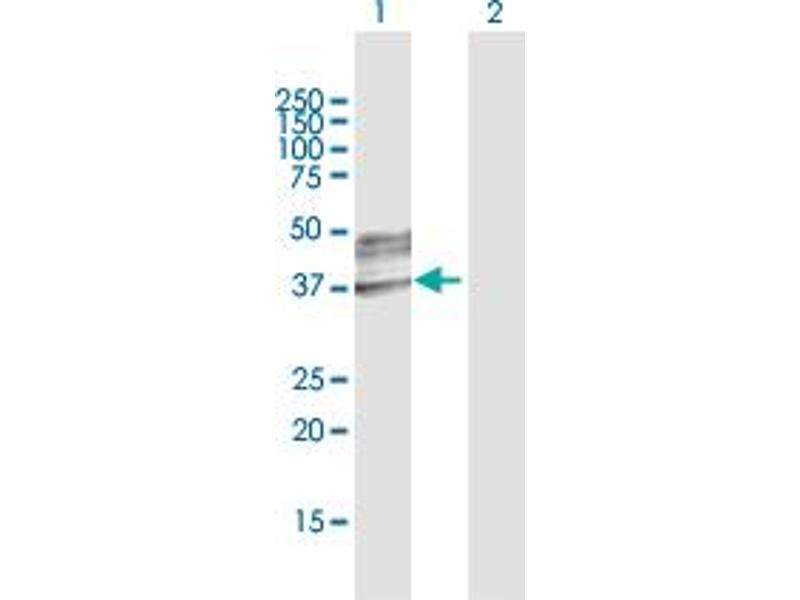 Image no. 3 for anti-UDP-GlcNAc:betaGal beta-1,3-N-Acetylglucosaminyltransferase 3 (B3GNT3) (AA 1-372) antibody (ABIN948926)