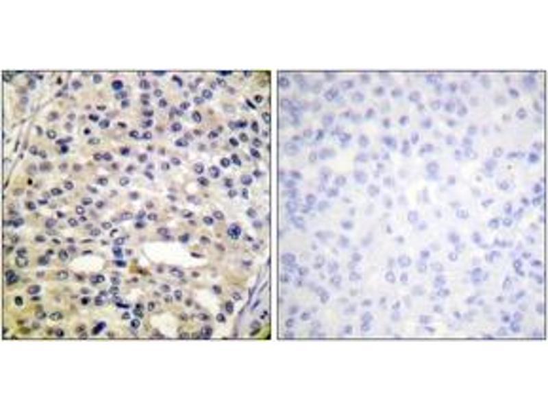 Immunohistochemistry (IHC) image for anti-Vimentin antibody (VIM) (pSer56) (ABIN1531760)