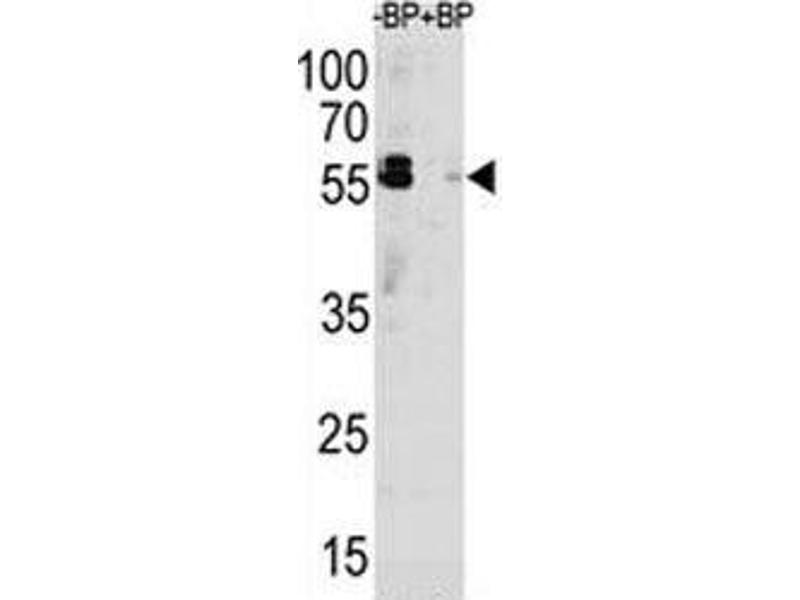 Western Blotting (WB) image for anti-KHDRBS1 antibody (KH Domain Containing, RNA Binding, Signal Transduction Associated 1) (AA 317-346) (ABIN3031543)