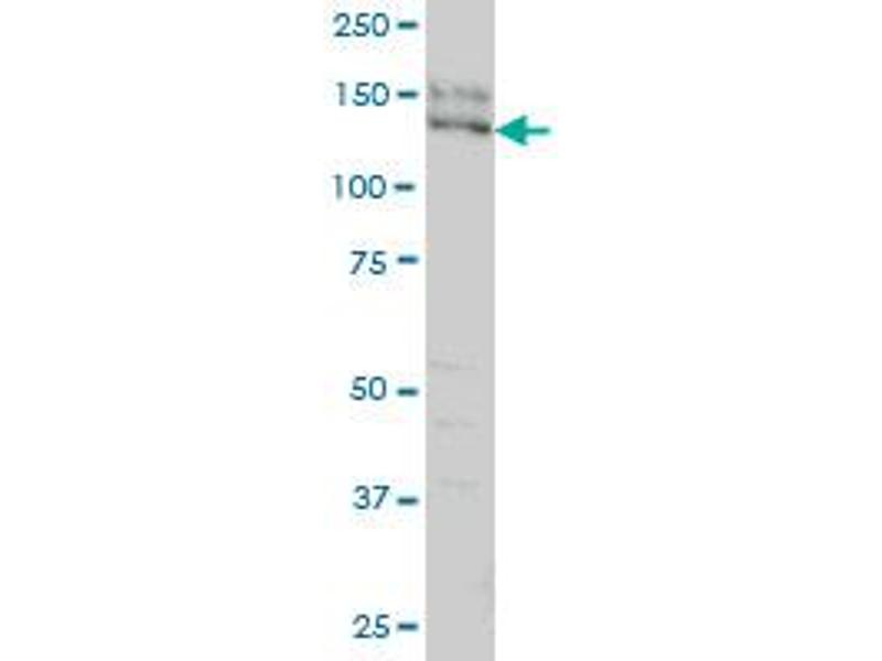 Western Blotting (WB) image for anti-Sperm Associated Antigen 5 (SPAG5) (AA 1082-1191), (partial) antibody (ABIN564630)