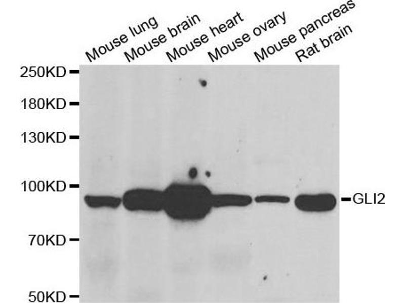 Image no. 1 for anti-GLI Family Zinc Finger 2 (GLI2) antibody (ABIN2562834)