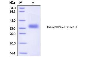 Image no. 1 for Kallikrein-Related Peptidase 13 (KLK13) (Active) protein (His tag) (ABIN1888664)