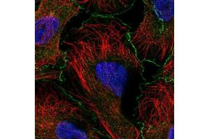Immunofluorescence (IF) image for anti-Abl-Interactor 1 (ABI1) antibody (ABIN5074814)