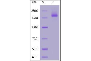 Image no. 1 for SARS-CoV-2 Spike (Super Stable Trimer) protein (His tag) (ABIN6953299)