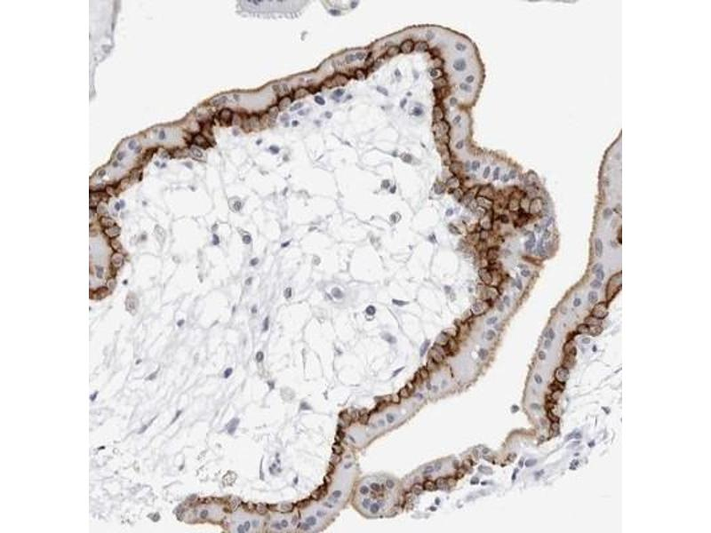 Immunohistochemistry (Paraffin-embedded Sections) (IHC (p)) image for anti-Solute Carrier Family 19 (Folate Transporter), Member 1 (SLC19A1) antibody (ABIN4349798)