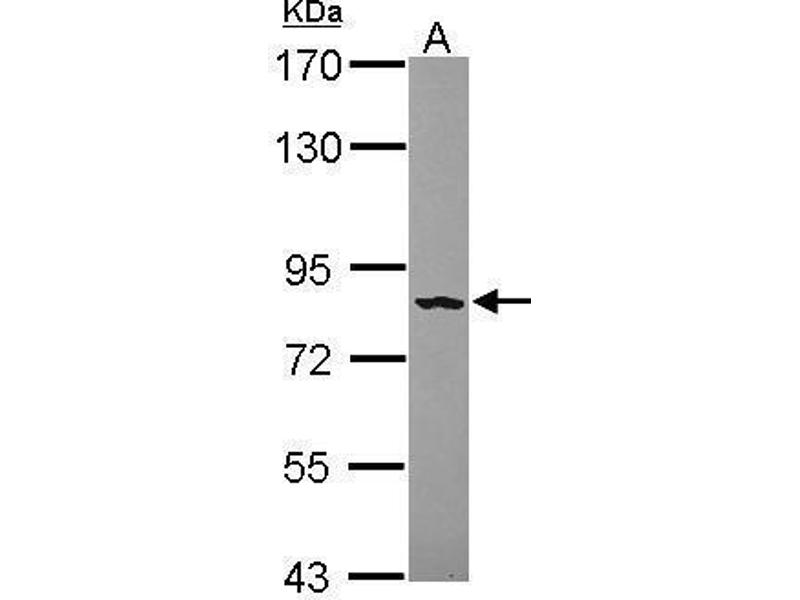Western Blotting (WB) image for anti-Fibroblast Growth Factor Receptor 4 (FGFR4) (Center) antibody (ABIN2856017)