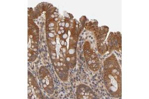Immunohistochemistry (Paraffin-embedded Sections) (IHC (p)) image for anti-Late Endosomal/lysosomal Adaptor, MAPK and MTOR Activator 2 (LAMTOR2) antibody (ABIN4350844)