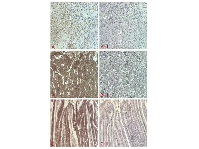 Immunohistochemistry (IHC) image for anti-Fibroblast Growth Factor 21 (FGF21) antibody (ABIN1169424)