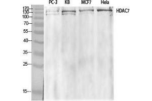 Image no. 2 for anti-Histone Deacetylase 7 (HDAC7) (Tyr721) antibody (ABIN3184990)
