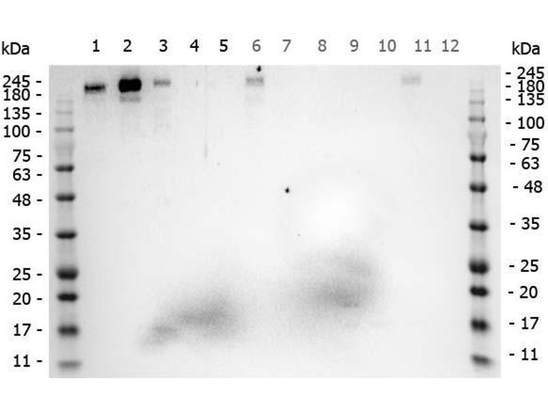 Image no. 5 for anti-Roundabout, Axon Guidance Receptor, Homolog 1 (Drosophila) (ROBO1) (AA 1632-1644) antibody (ABIN129621)