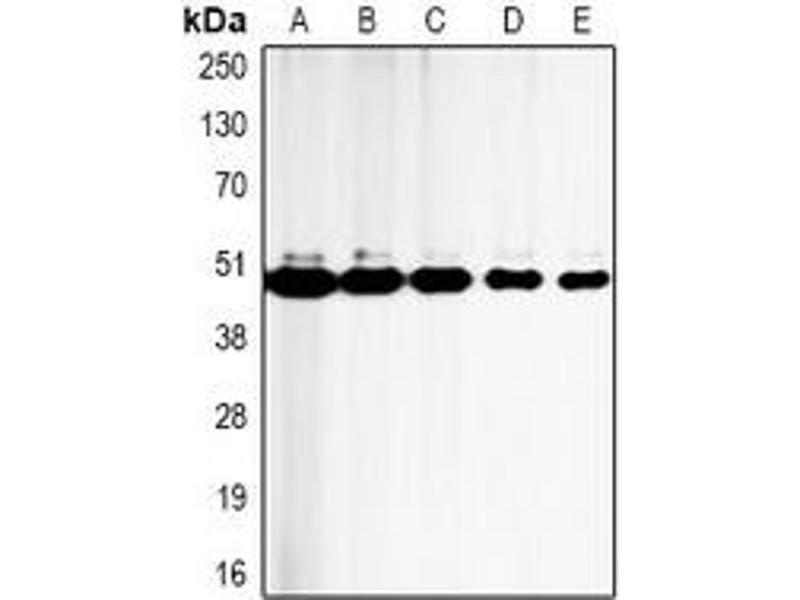 Western Blotting (WB) image for anti-Caspase 9 antibody (Caspase 9, Apoptosis-Related Cysteine Peptidase) (ABIN2852722)
