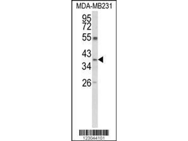 Western Blotting (WB) image for anti-Arginase, Liver (ARG1) (AA 293-322), (Arg1), (C-Term) antibody (ABIN652925)