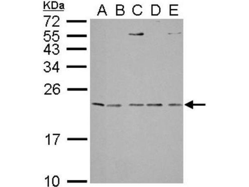 Western Blotting (WB) image for anti-IL1RN antibody (Interleukin 1 Receptor Antagonist) (ABIN442533)
