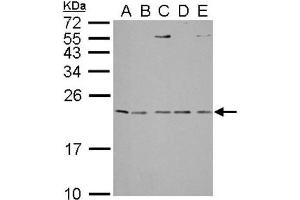 Western Blotting (WB) image for anti-IL1RN antibody (Interleukin 1 Receptor Antagonist) (Center) (ABIN442533)