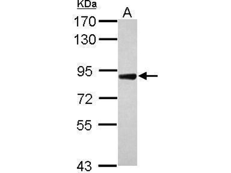 Western Blotting (WB) image for anti-DDR2 antibody (Discoidin Domain Receptor tyrosine Kinase 2) (C-Term) (ABIN2855450)