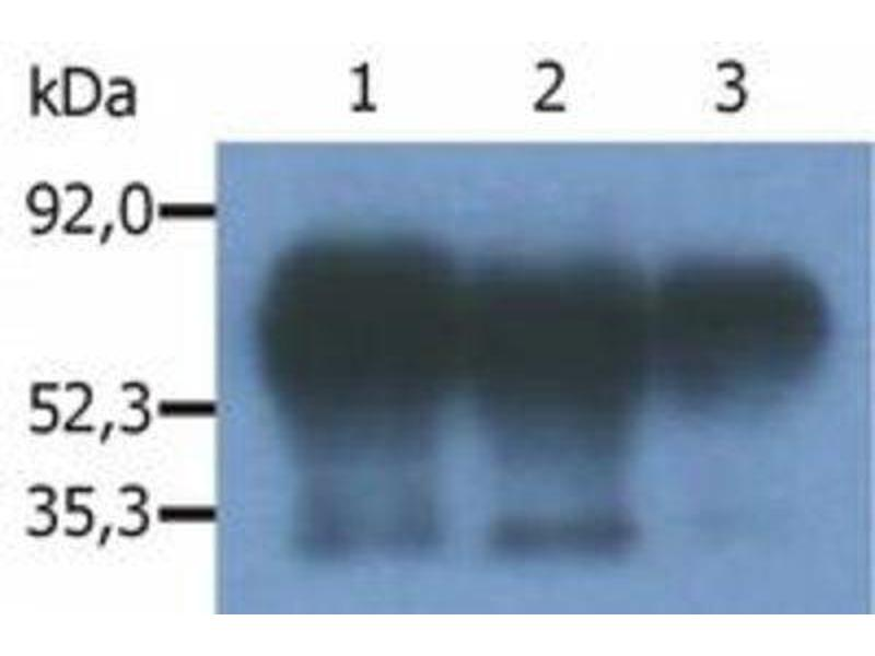 Immunoprecipitation (IP) image for anti-PAG1 antibody (phosphoprotein Associated with Glycosphingolipid Microdomains 1) (C-Term) (ABIN269119)