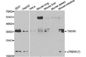 Image no. 1 for anti-Triggering Receptor Expressed On Myeloid Cells 1 (TREM1) antibody (ABIN3020895)