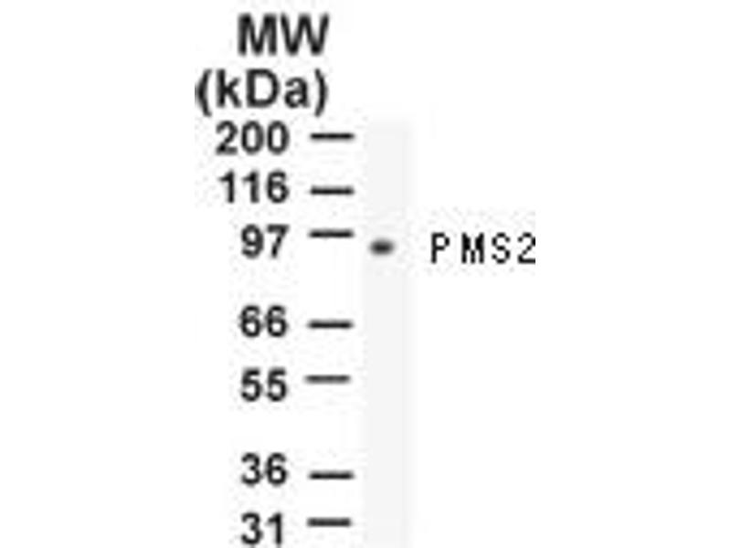 Western Blotting (WB) image for anti-PMS2 Postmeiotic Segregation Increased 2 (S. Cerevisiae) (PMS2) antibody (ABIN252510)