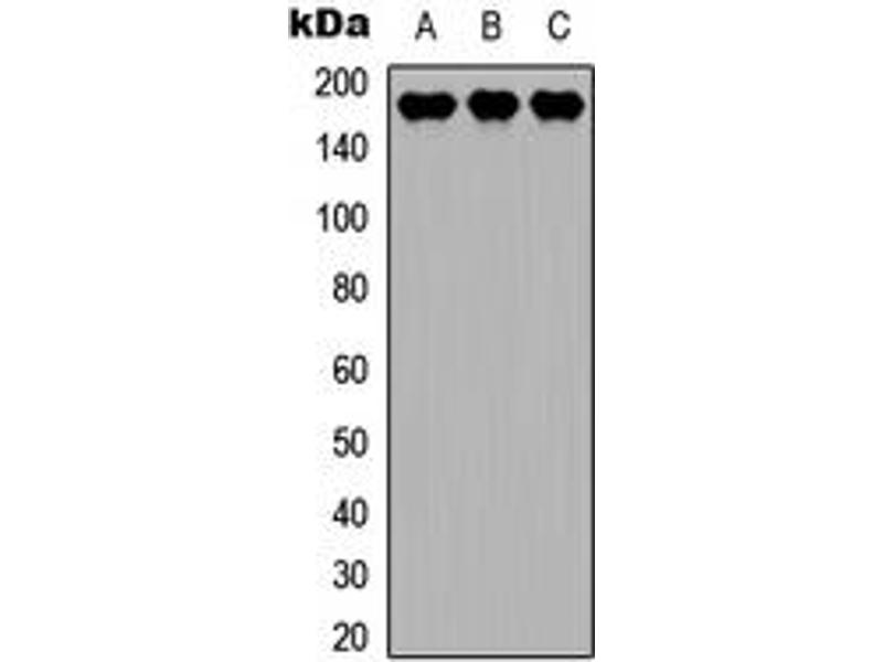 Western Blotting (WB) image for anti-MAP3K4 antibody (Mitogen-Activated Protein Kinase Kinase Kinase 4) (C-Term) (ABIN2704980)