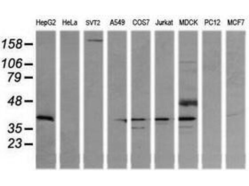 image for anti-Mitogen-Activated Protein Kinase Kinase 3 (MAP2K3) antibody (ABIN1499403)
