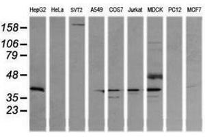 Image no. 4 for anti-Mitogen-Activated Protein Kinase Kinase 3 (MAP2K3) antibody (ABIN1499403)