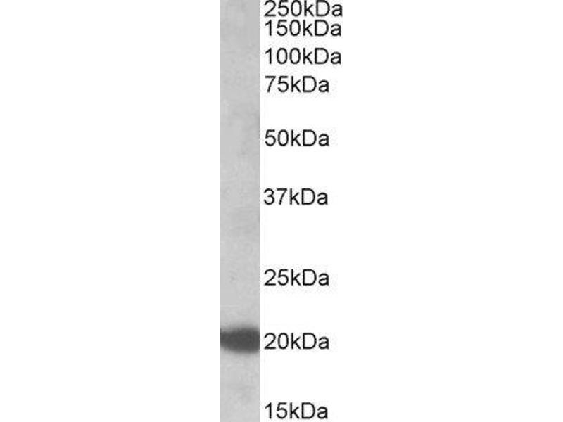 Western Blotting (WB) image for anti-GTPase NRas (NRAS) (Internal Region) antibody (ABIN2564225)