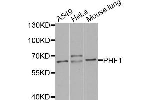 Image no. 1 for anti-PHD Finger Protein 1 (PHF1) antibody (ABIN6571768)