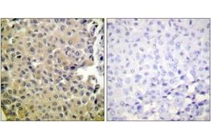 Image no. 2 for anti-Protein Phosphatase 1, Catalytic Subunit, alpha Isoform (PPP1CA) (AA 281-330), (pThr320) antibody (ABIN1531470)