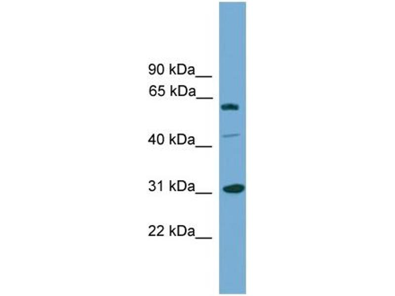 Western Blotting (WB) image for anti-RAD1 Homolog (S. Pombe) (RAD1) (Middle Region) antibody (ABIN2787356)