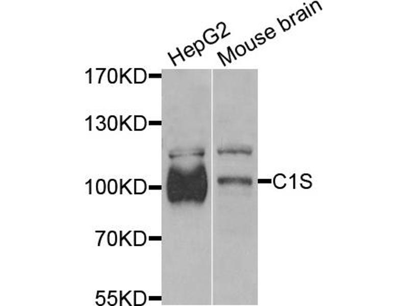 Western Blotting (WB) image for anti-Complement Component 1, S Subcomponent (C1S) antibody (ABIN6290127)