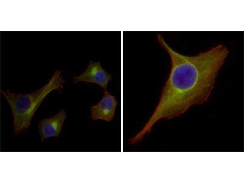 Immunocytochemistry (ICC) image for anti-Keratin 15 (KRT15) antibody (ABIN969250)