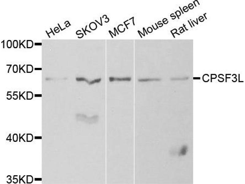 Image no. 2 for anti-Cleavage and Polyadenylation Specific Factor 3-Like (CPSF3L) antibody (ABIN2561983)