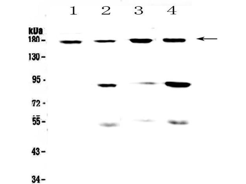 Western Blotting (WB) image for anti-Integrin alpha M (ITGAM) (AA 129-336) antibody (ABIN5693079)
