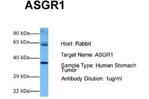 Image no. 3 for anti-Asialoglycoprotein Receptor 1 (ASGR1) (Middle Region) antibody (ABIN2778131)