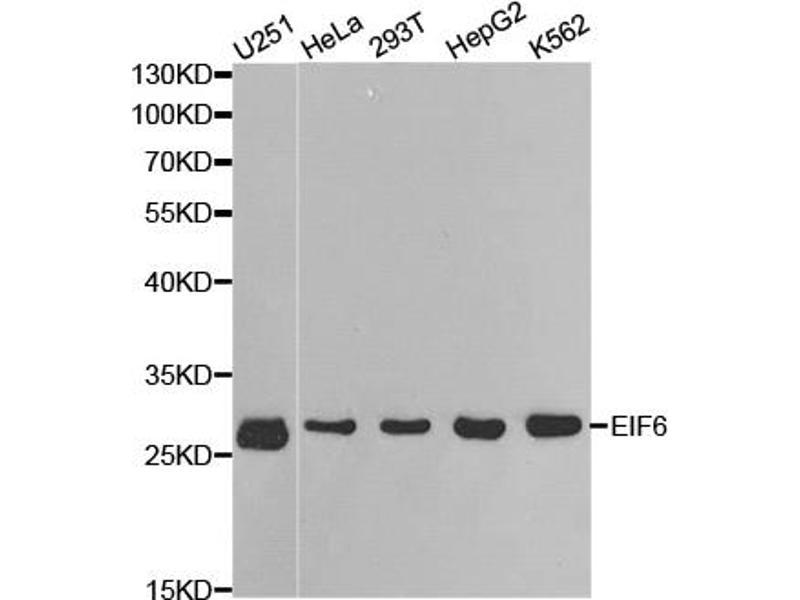 Image no. 1 for anti-Eukaryotic Translation Initiation Factor 6 (EIF6) antibody (ABIN6568917)