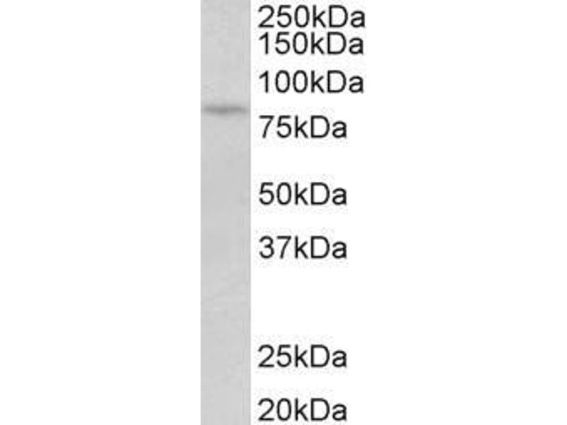 image for anti-Protein Kinase C, beta (PRKCB) (Internal Region) antibody (ABIN1590084)