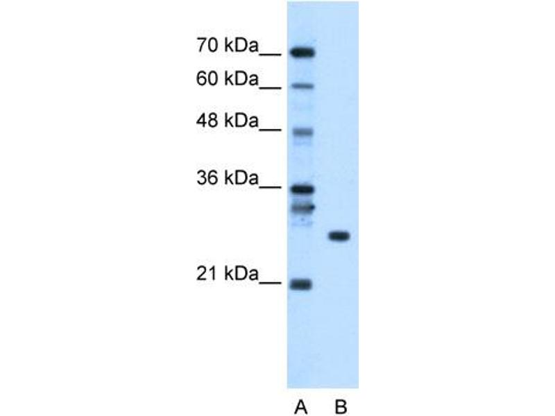 Western Blotting (WB) image for anti-RNA Binding Protein with Multiple Splicing (RBPMS) (N-Term) antibody (ABIN310013)