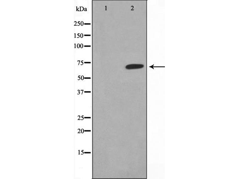 Western Blotting (WB) image for anti-Thyroid Hormone Receptor, beta (THRB) antibody (ABIN6265561)