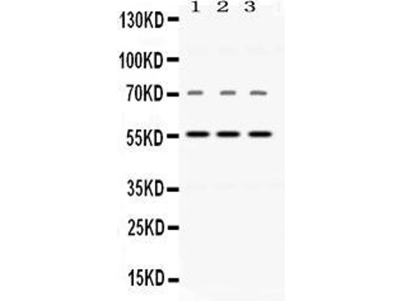 Image no. 2 for anti-Nicotinamide phosphoribosyltransferase (NAMPT) (AA 62-337) antibody (ABIN4886677)