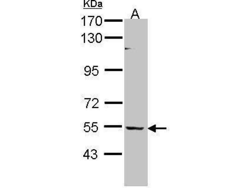 Western Blotting (WB) image for anti-BAI1-Associated Protein 2-Like-1 (BAIAP2L1) (Center) antibody (ABIN2856677)