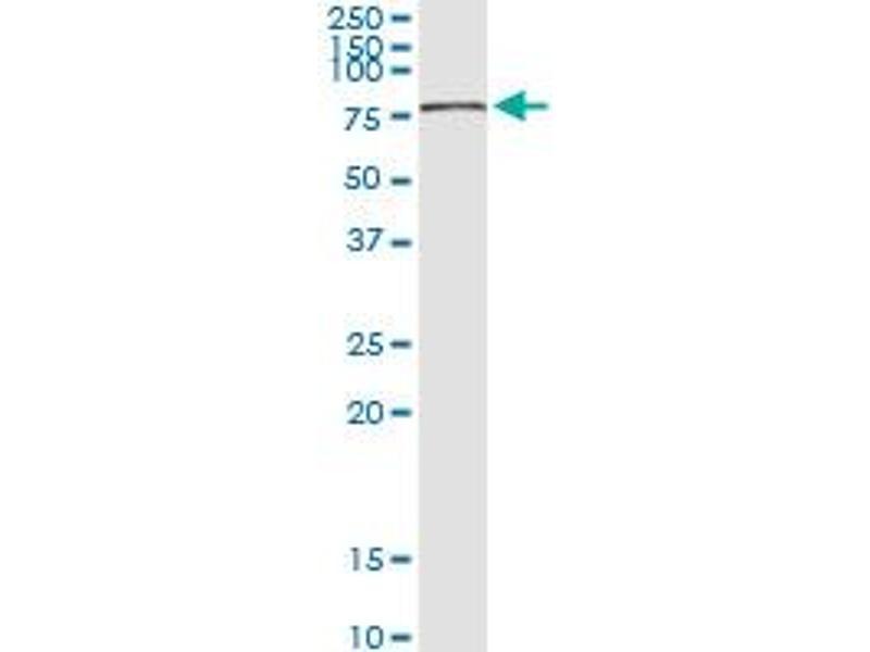Immunoprecipitation (IP) image for anti-Checkpoint Kinase 2 (CHEK2) (AA 1-543), (full length) antibody (ABIN950070)