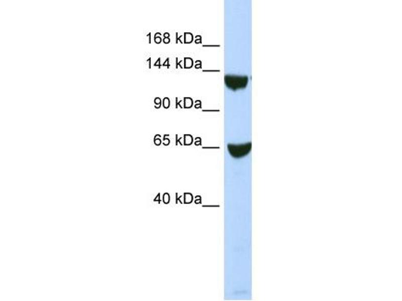 Western Blotting (WB) image for anti-SWI/SNF Related, Matrix Associated, Actin Dependent Regulator of Chromatin, Subfamily A, Member 1 (SMARCA1) (N-Term) antibody (ABIN2780460)